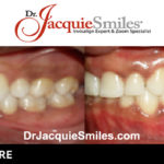 before-after-patient-dr-jacquie-000011