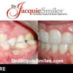 before-after-patient-dr-jacquie-00002