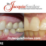 before-after-patient-dr-jacquie-000031