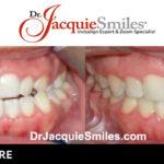 before-after-patient-dr-jacquie-0002