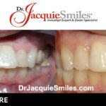 before-after-patient-dr-jacquie-0003