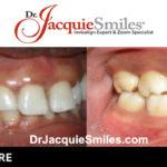 before-after-patient-dr-jacquie-001