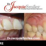 before-after-patient-dr-jacquie-003