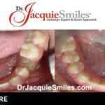 before-after-patient-dr-jacquie-02