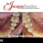 before-after-patient-dr-jacquie-031