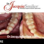 before-after-patient-dr-jacquie-041