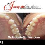 before-after-patient-dr-jacquie-1-2