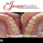 before-after-patient-dr-jacquie-2