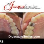 before-after-patient-dr-jacquie-3