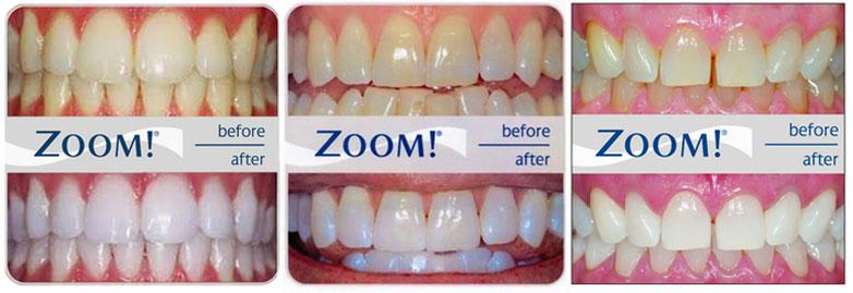Zoom Teeth Whitening Cost In Monroe Ny