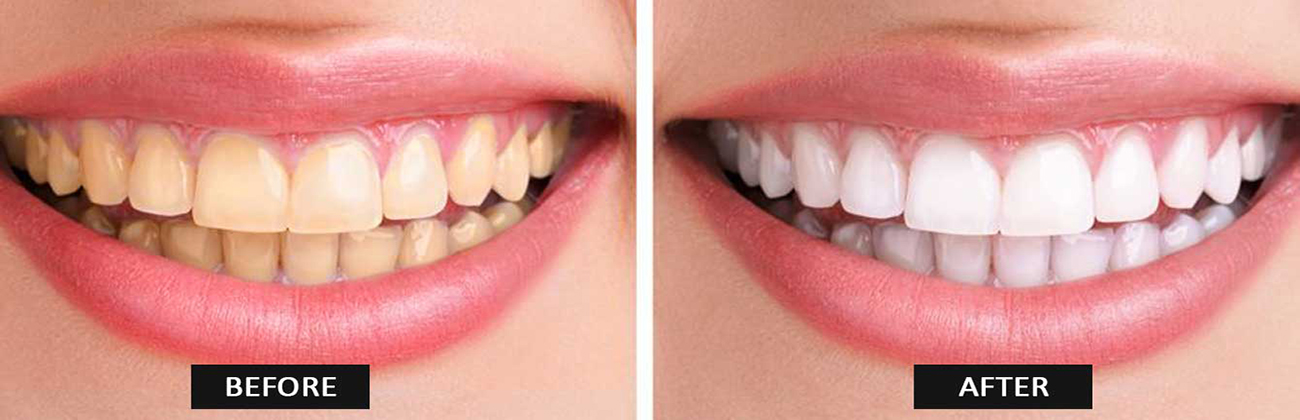 Remove Stains With In Office Teeth Whitening In Monroe Ny